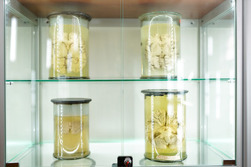 human brain in jar on light background in formalin . Medical clinic concept. science museum