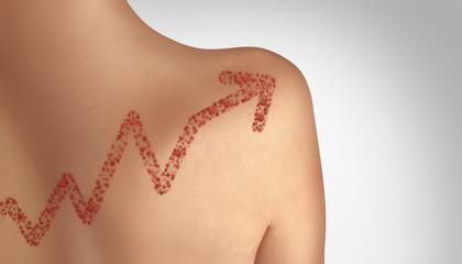 Increase In Measles Cases