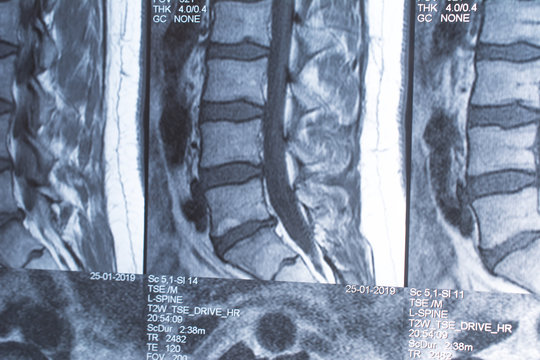 Magnetic resonance tomography (MRT) of the lumbar spine. Hernia of the lumbar spine. Schmorl defects in bodies L3 and L5. Herniated intervertebral disc L5 / S1.
