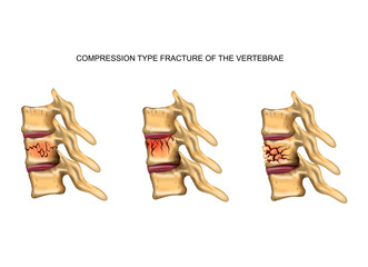 compression type fracture of the spine