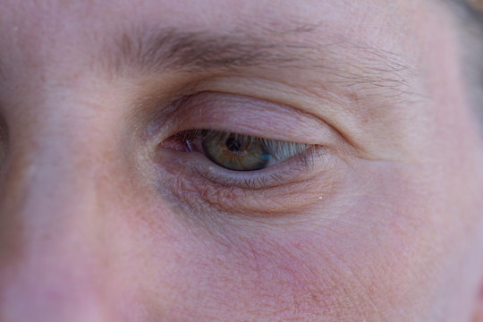 A closeup view on the lines of the lower eyelid of a Caucasian lady with green eyes