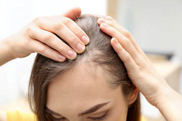 Young woman with hair loss problem indoors, closeup