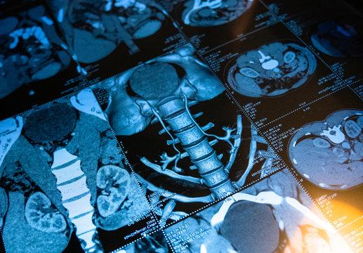 Human spine, health examination. Computed tomogram of human internal organs.