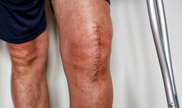 Man on crutches after knee replacement surgery, stitches close up. Painful scar after knee surgery