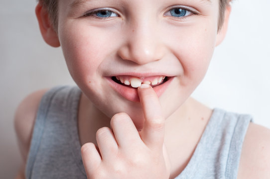 children's teeth, loss and fingers pointed at the incisor teeth, children's mouths of child close up, incisor milk tooth missing of kid