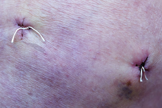 stitches in knee scar by arthroscopy operation at meniscal tear