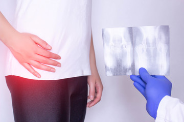 Doctor holds x-ray picture on the background of a girl with a sore hip joint and intervertebral hernia, fibromyalgia, close-up