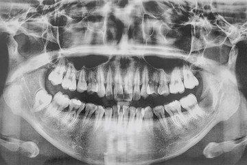 Film, oral cavity and teeth