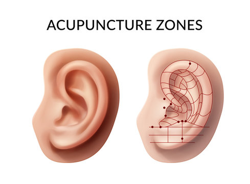 Ear acupuncture zones