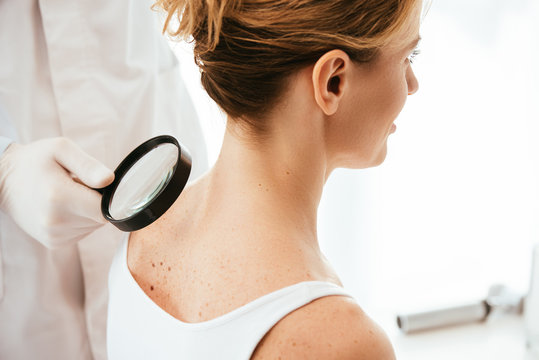 cropped view of dermatologist holding magnifying glass while examining woman with melanoma