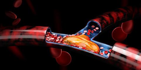 3d Illustration of Deep Vein Thrombosis or Blood Clots, Embolism.