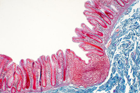 Human large intestine tissue under microscope view.