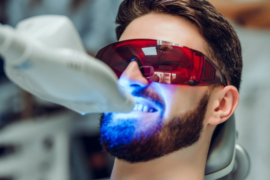 Man having teeth whitening by dental UV whitening device,dental assistant taking care of patient,eyes protected with glasses. Whitening treatment with light, laser, fluoride.
