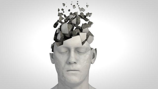 Alzheimer's disease or memory loss