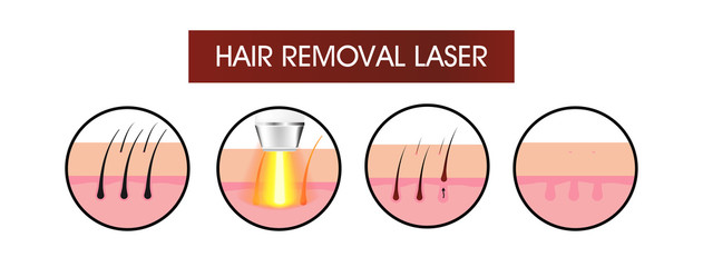 Hair removal laser icon