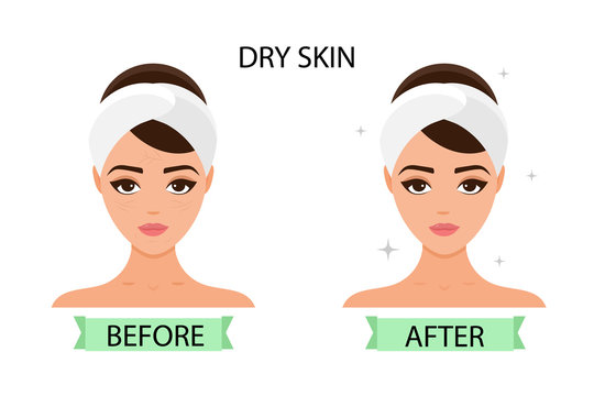 Girl has dry skin on her face. Before and after. Concept of skincare, pure and healthy skin. Vector illustration.