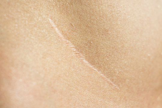 Close-up, beautiful surgical scar on the skin after appendectomy