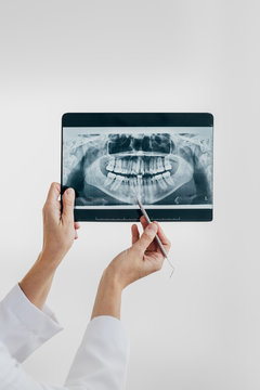 Doctor showing a dental x-ray
