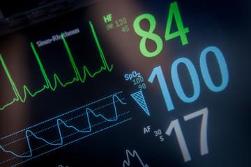 Monitor EKG