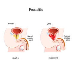 Prostatitis. swelling and inflammation of the prostate gland