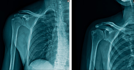 x-ray human shoulder in blue tone