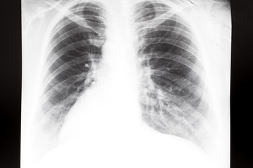 human thorax with lungs on X-ray image