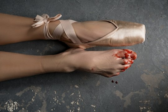 Damaged bloody legs of ballerina