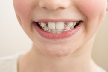 A child with a bracket on the teeth. Concept of pediatric dentistry, correcting the bite. Closeup, selective focu