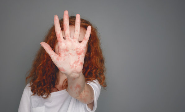 Stop Measles. Woman With Red Spots Over Grey Background