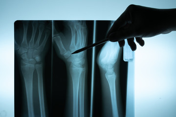 X ray film with doctor's hand to examine