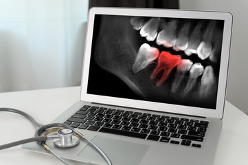 Dentist dental tool to teeth x-ray work Looking At Teeth X-ray On Computer