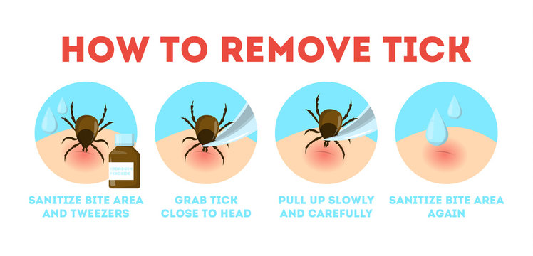 Tips for tick safety infographic. How to remove mite
