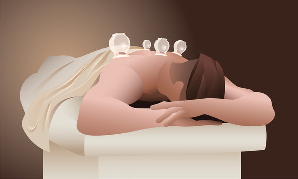 The man on the cupping therapy session illustration for web and print. Male athlete relaxing on massage table with cups on his back for his muscles recovery. Sports medicine and recuperation concept.