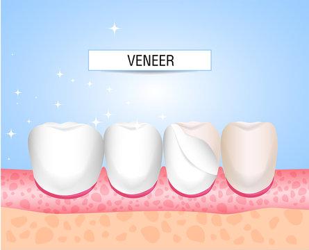 Veneers, Lumineers, onlays, microprosthesis. Installation of veneers. Aesthetic medicine. Direction dentistry orthopedics