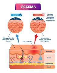 Eczema vector illustration. Labeled anatomical structure comparative scheme
