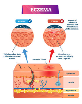Eczema vector illustration. Labeled anatomical structure comparative scheme