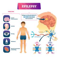 Epilepsy vector illustration. Labeled sick CNS disorder educational scheme.