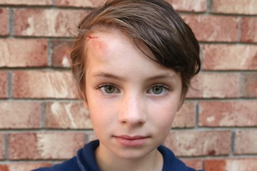 Closeup of the face of a short haired child with big green eyes and a big bruise and cut on the forehead