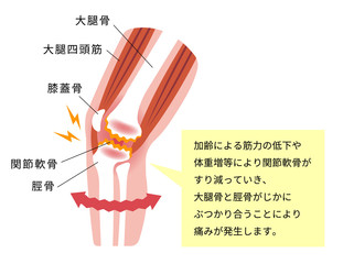 膝の関節痛(変形性膝関節症) 発生の仕組みと原因 イラスト