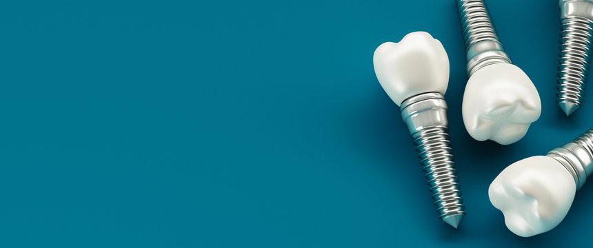 Dental care, modern clinic, 3d rendering