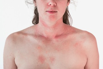 Allergic skin reaction on the female neck and face - red rash Wall mural