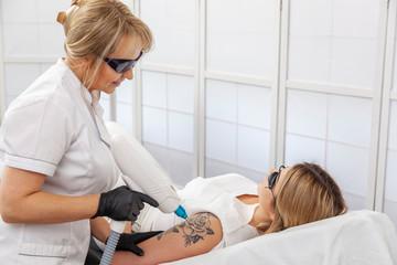 Laserowe usuwanie tatuażu w salonie kosmetycznym - Laser Q-switch