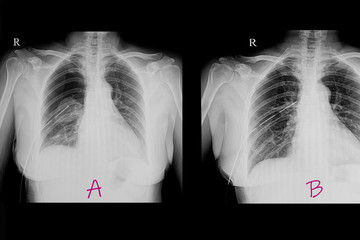 Chest x ray film of a patient with pneumothorax