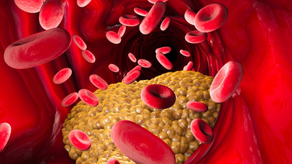 Cholesterol formation, fat, artery, vein, heart. Red blood cells, blood flow. Narrowing of a vein for fat formation