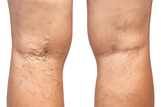 Varicose vein on woman's leg isolated on white background.Vascular disease concept. Clipping path.