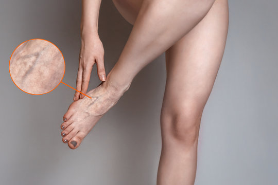 A young woman rubs her leg because of fatigue and pain in the vessels. The concept of varicose veins. Magnification in a single image