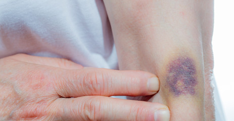 A strong hematoma due to a wrong injection. Concept medical mistakes.