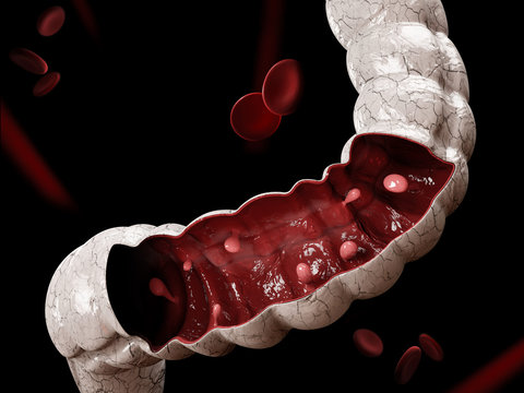 Colon polyps. 3d illustration, Polyp in the intestine.