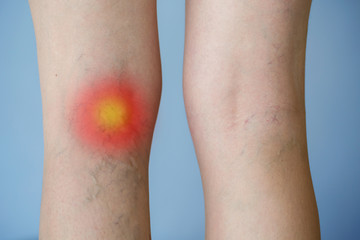Varicose veins on a leg with red dot effect.