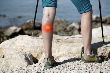 Woman with painful varicose veins on a leg with red dot effect.